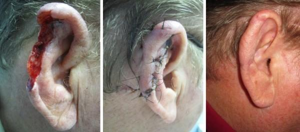 After the helical rim was destroyed by cancer, Dr. Harris reconstructed this ear with a retroauricular flap. Postoperative photos at 2 weeks and 3 months.