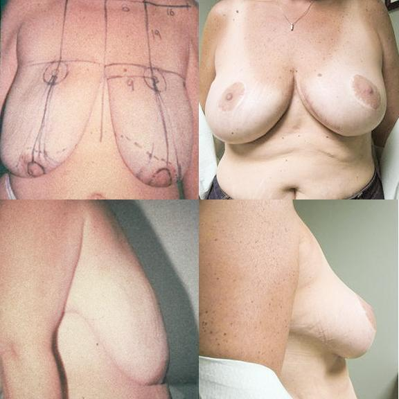 Case #3: 43 year old with 100# weight loss after gastric bypass. 457 grams of skin only removed: postoperative photos. Note that there is no vertical scar below the areola.