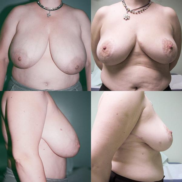 "Case #1: 155 pounds, 5'1"". 560 grams removed from right, 621 grams from left breast. Postoperative photos at 6 months."