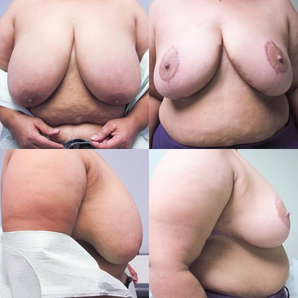 "Case #2: 203 pounds, 5'2"". 622 grams removed from right, 700 grams from left breast. Note: No vertical scar with this breast reduction. Postoperative photos at 4 months."