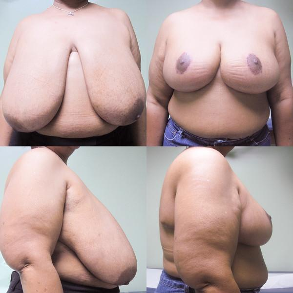"Case #3: 180 pounds, 5'3"". 1237 grams removed from right, 1046 grams from left breast. Note: No vertical scar with this breast reduction. Postoperative photos at 3 months."
