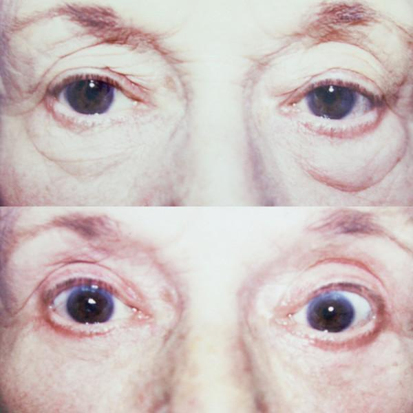 Case #1: Upper and lower lid blepharoplasty. Postoperative photo at 4 months.