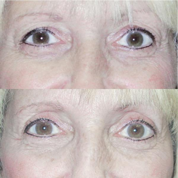 Case #11: Upper lid blepharoplasty. Postoperative photo at 2 months.