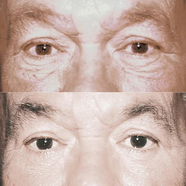 Case #4: Lower lid blepharoplasty only. Post-op photo at 6 months.