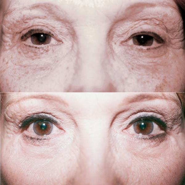 Case #2: Upper + lower lid blepharoplasty. Post-op photo at 5 months.