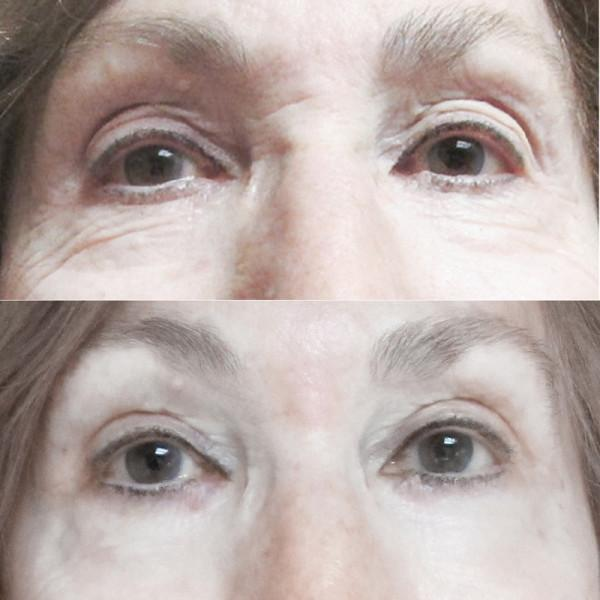 Case #10: Upper and lower lid blepharoplasty. Post-op photo at 6 months.