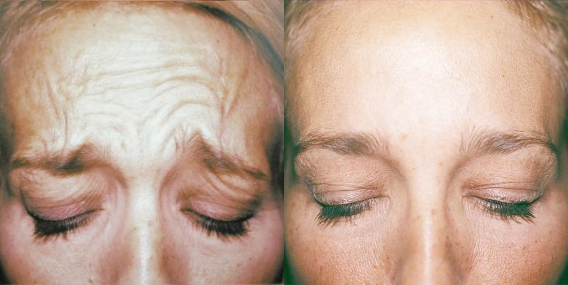 Case #1: Forehead lines, before and after treatment.