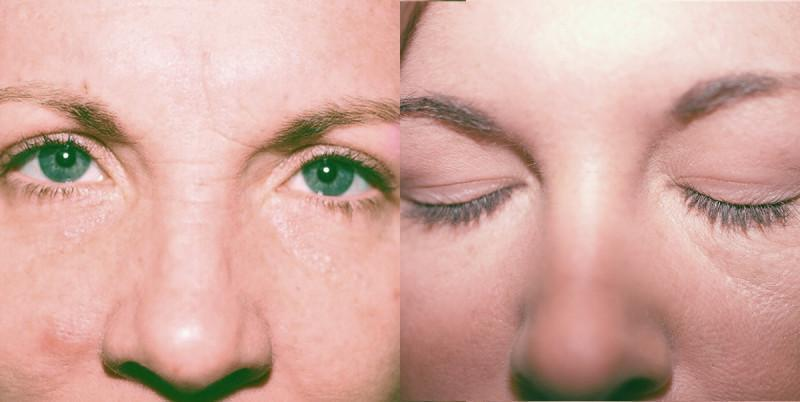 Case #2: Glabellar lines (at the top of the nose), before and after treatment.