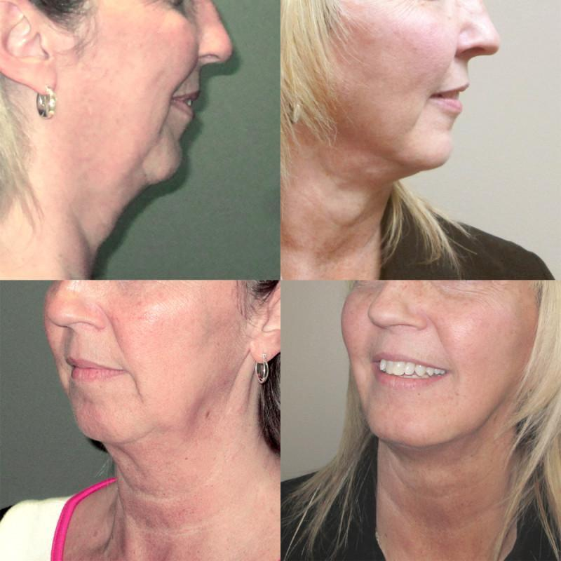 Case #2: Chin augmentation to improve facial balance. Postoperative photos (below) at 2 months.