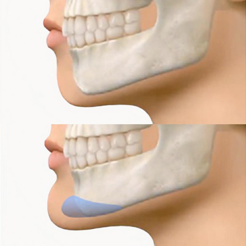 Illustration demonstrating the placement of the chin implant.