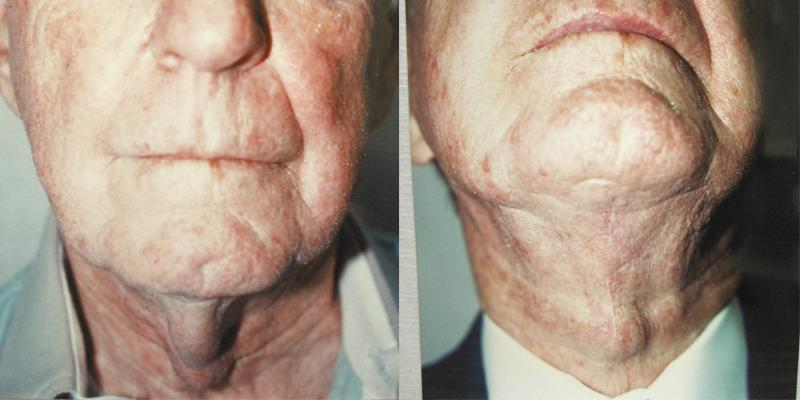 Sometimes (especially for men) a direct excision of the excess neck skin & fat is best treatment.
