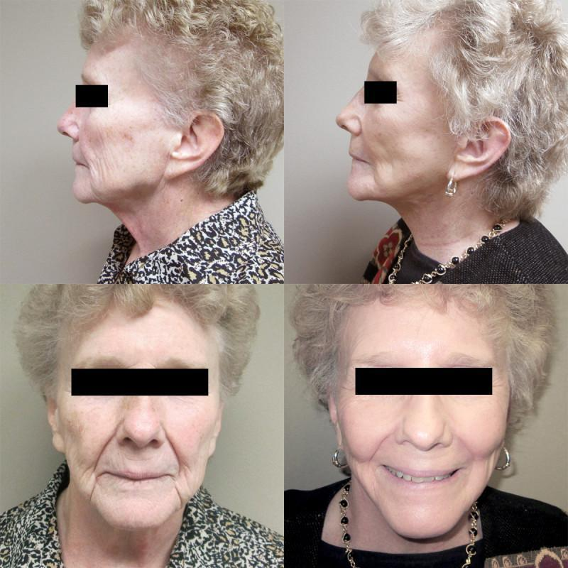 Case #7: Face lift and full face laser resurfacing. Postoperative photos at 6 months.