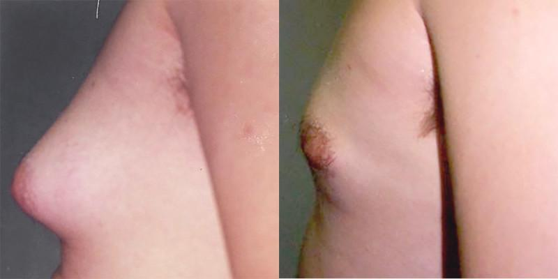 Case #1: Gynecomastia pre-op photo on the left. Post-op photo on the right.