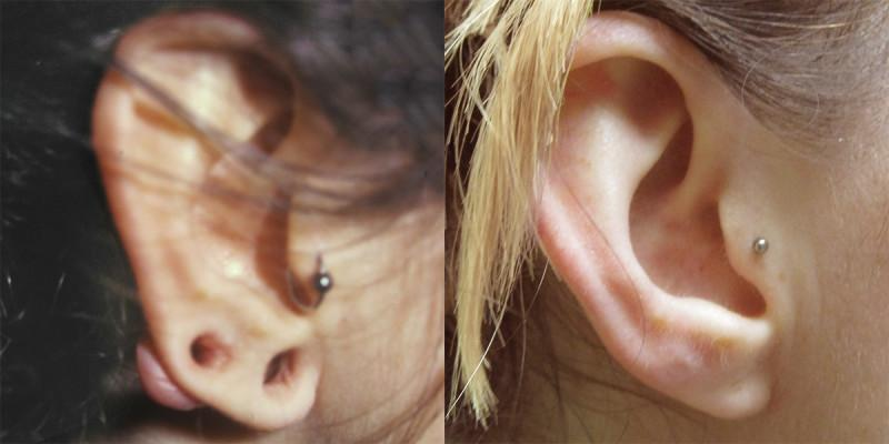 Case #5: Both gauges in the ear were removed, allowed to contract over several weeks, and then reconstructed.