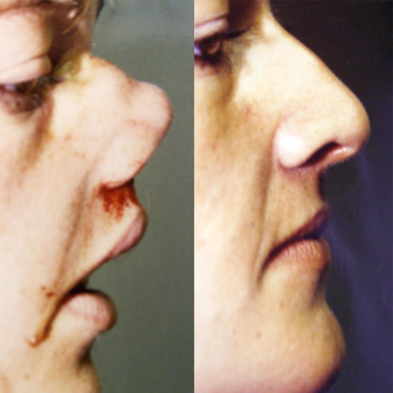Case #1: Traumatic nose deformity. Postoperative photo at 2 months.