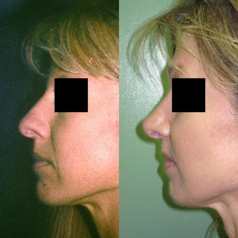 Case #3: Cosmetic Rhinoplasty: Postoperative photos at 2 years.