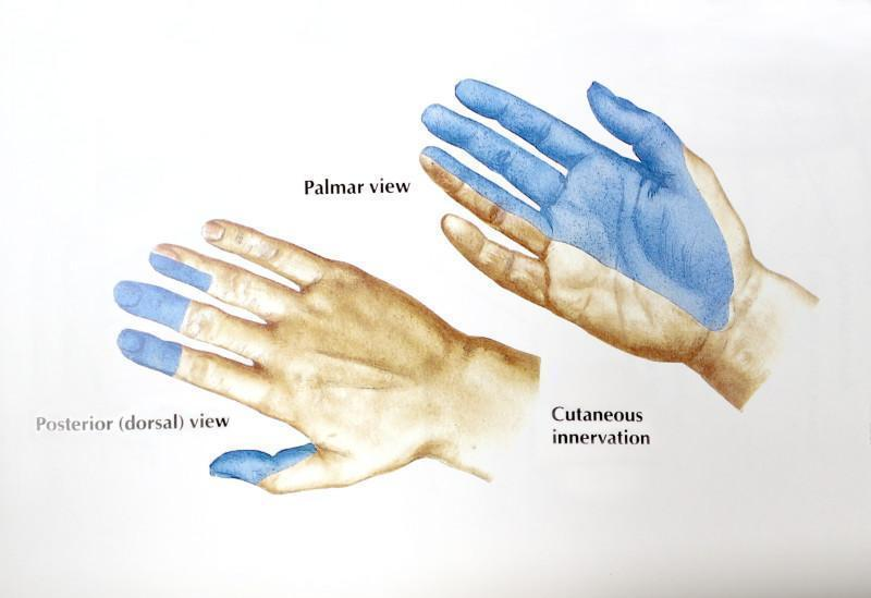 Area of Numbness with Carpal Tunnel Syndrome