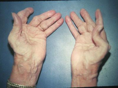 Rheumatoid Arthritis of the Hands
