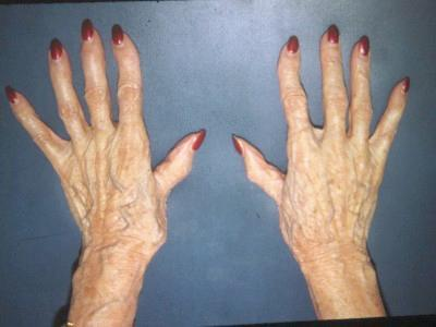 Osteoarthritis (Degenerative Arthritis) of the Hands