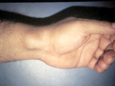 Volar Wrist Ganglion