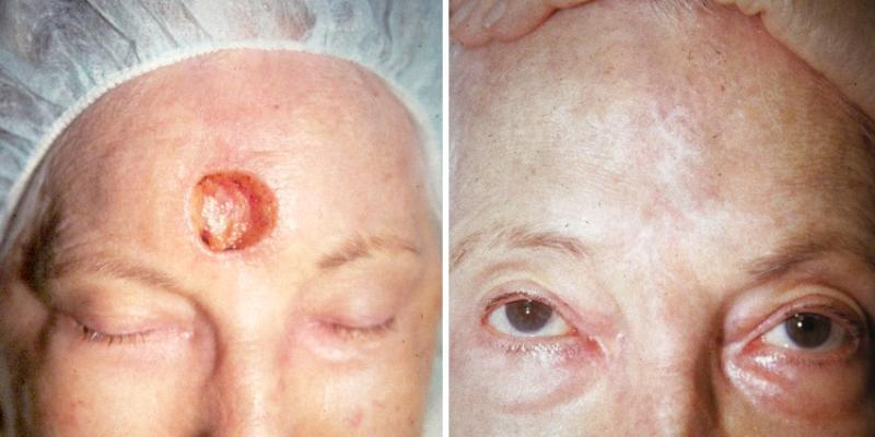 Skin Cancer of the Forehead