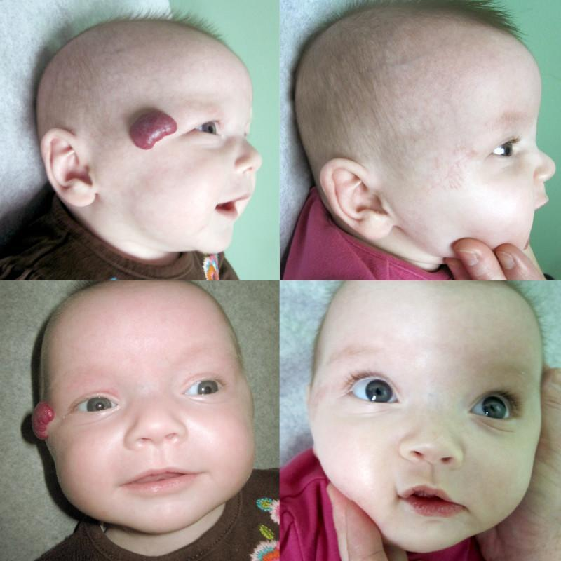 Case #1: Congenital facial hemangioma. Patient is 3 months old. Postoperative photos at 6 weeks.