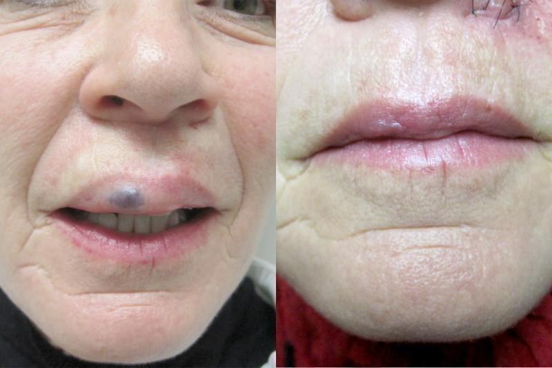 Case #2: Lip hemangioma excised by Dr. Harris. Post-op photo at 8 weeks.