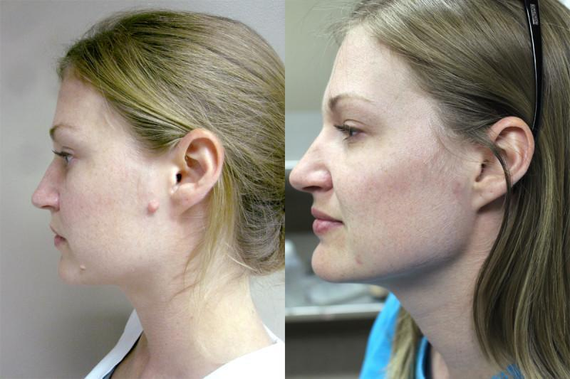 Case #4: Before and after photographs of excision of benign skin lesions. Postoperative photograph at 8 weeks.