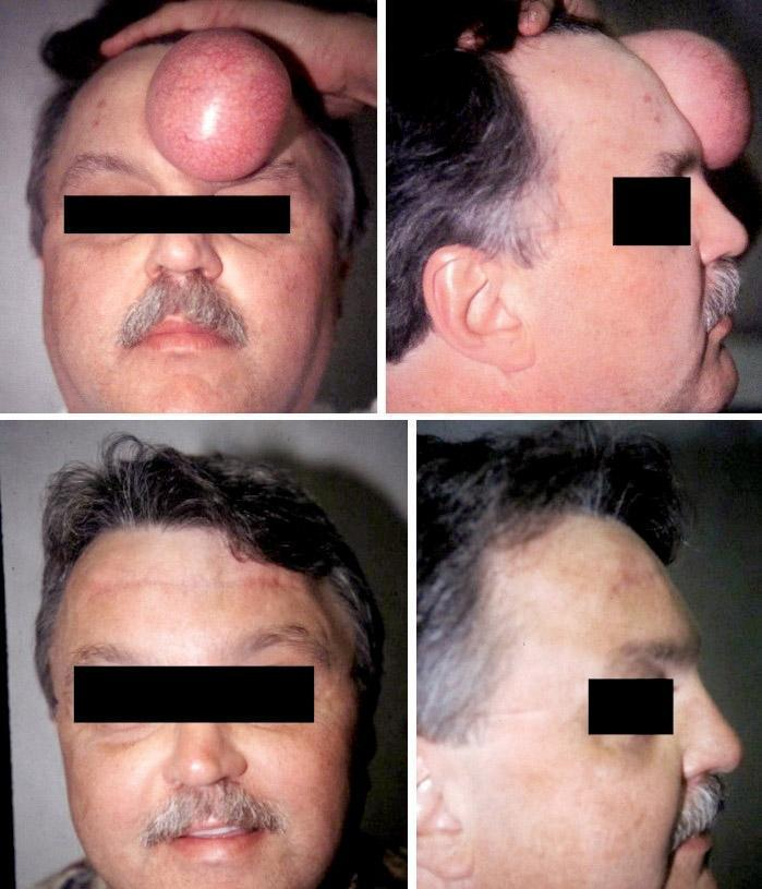 Case #6: This patient had suffered with this large, benign, forehead lipoma for over 10 years. Postoperative photos at 4 months.