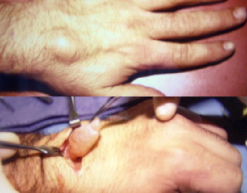 Removal of a dorsal wrist ganglion.