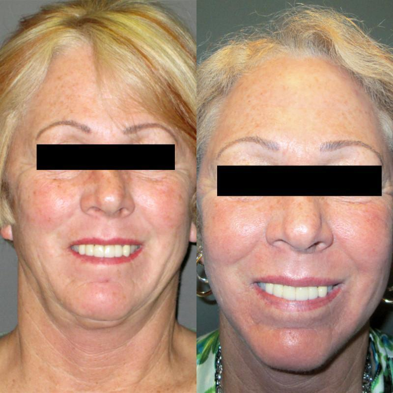 Case #1: Full face and neck laser resurfacing. Postoperative photo at 6 months.