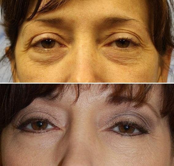 Case #14: Upper and lower lid blepharoplasty. Postoperative photo at 4 months.