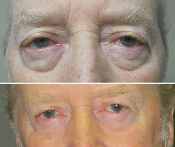 Case #15: Upper and lower lid blepharoplasty. Postoperative photo at 5 months.