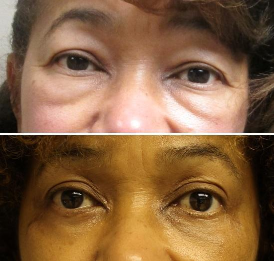 Case #16: Upper and lower lid blepharoplasty. Postoperative photo at 5 months.