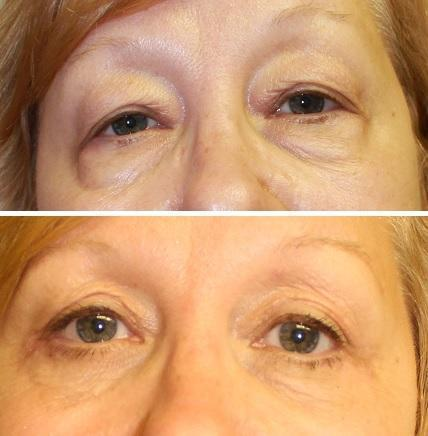 Case #18: Upper and lower lid blepharoplasty. Postoperative photo at 5 months.