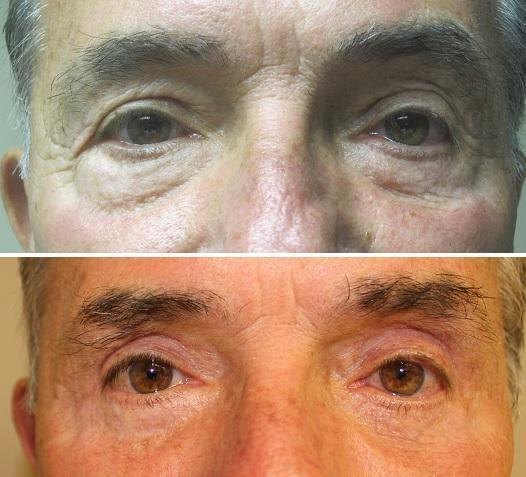 Case #19: Upper and lower lid blepharoplasty. Postoperative photo at 6 months.
