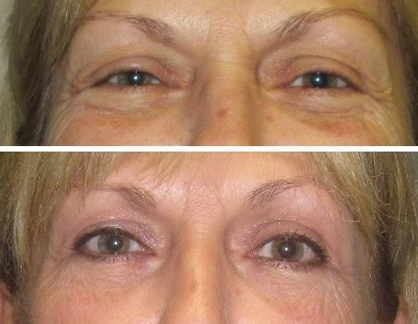 Case #20: Upper and lower blepharoplasties. Postoperative photo at 8 months.