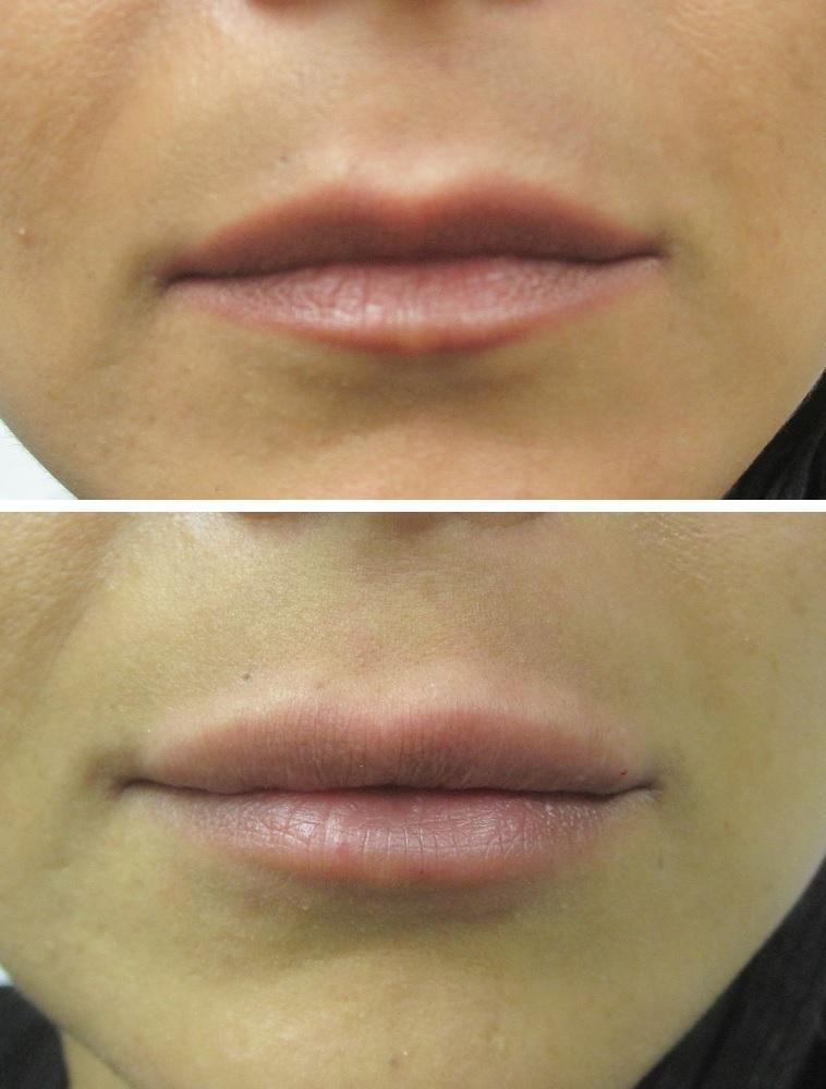 Case #1: Juvederm Ultra Plus XC lip augmentation.