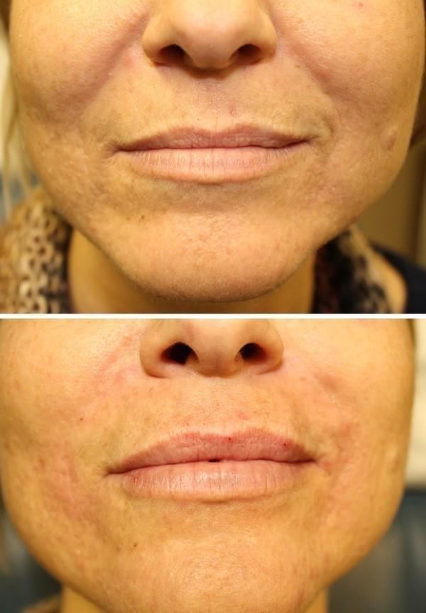 Case #2: Filler to lips and nasolabial folds.