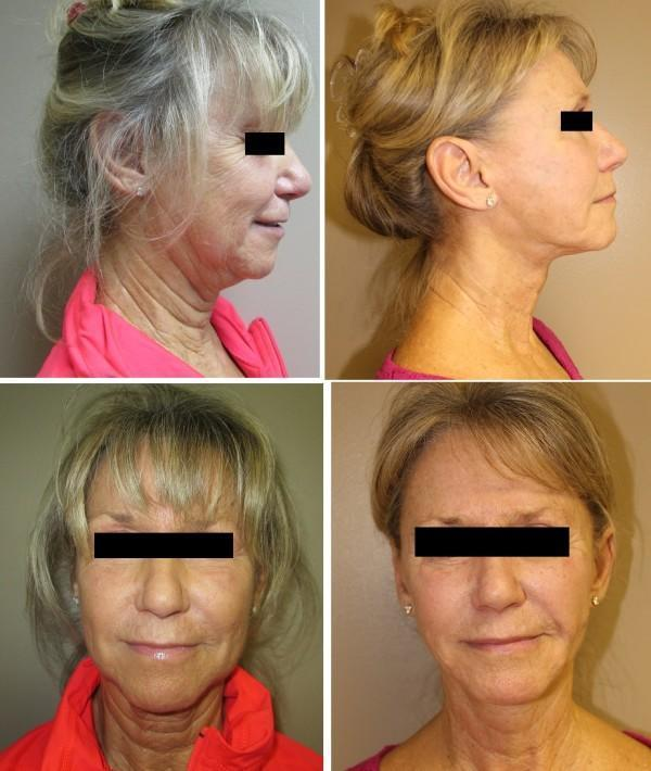 Case #16: Face lift, neck lift and laser resurfacing. Postoperative photos at 8 months.