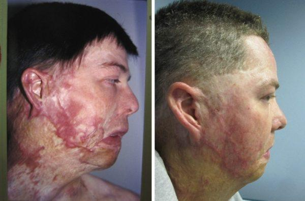 "Thick, uncomfortable burn scar on neck and face, which limited range of motion. Reconstructed utilizing a process called ""tissue expansion"". Post-op photo at 4 years."
