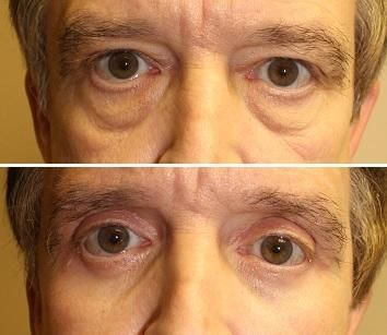Case #21: Upper and lower lid blepharoplasties. Postoperative photo at 6 months.