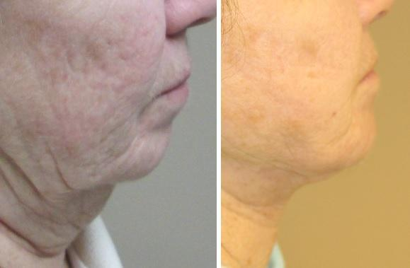 Case #3: Chin augmentation and Face-lift to improve facial proportions. Postoperative photo at 6 months.
