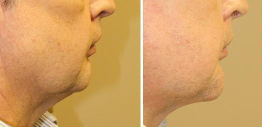 Case #4: Chin augmentation and Face-lift to improve facial proportions. Postoperative photo at 6 months.