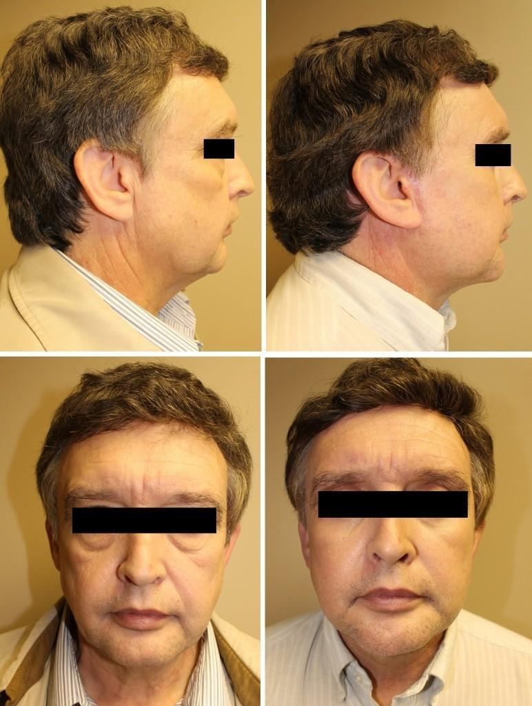 case 20 face lift neck lift blepharoplasties and chin augmentation