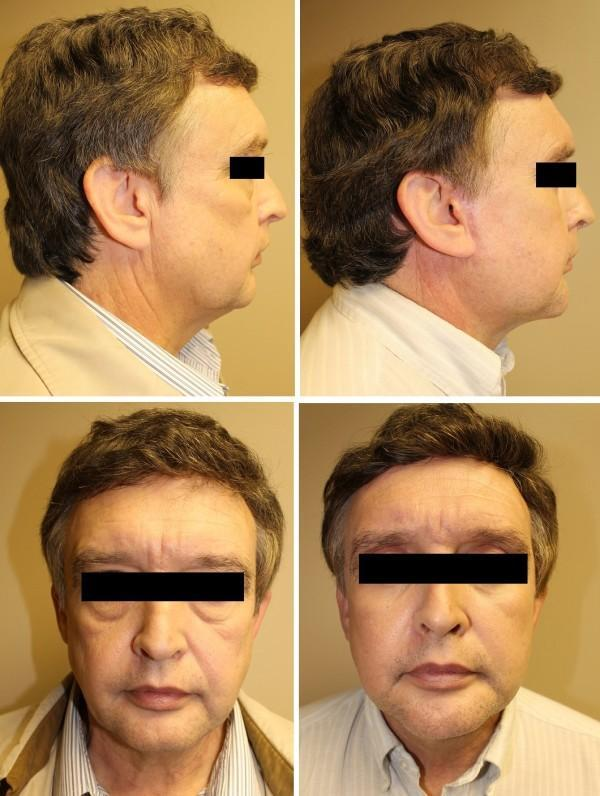 Case #20: Face lift, neck lift, blepharoplasties and chin augmentation. Postoperative photographs at 6 months