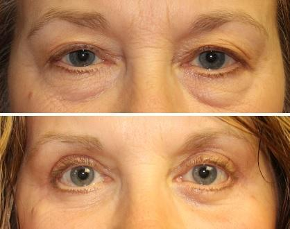 Case #9: Upper and lower lid blepharoplasty. Post-operative photo at 2 months.