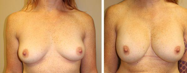 "Case #13: 38 year old, 5'7"", 155#. 390cc subpectoral textured, shaped silicone gel implant. Postoperative photo at 1 year."