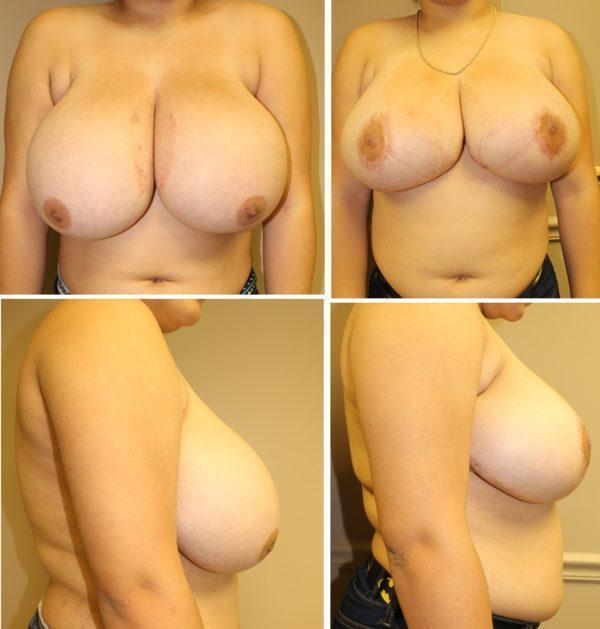 Case #7: 1445 grams of breast tissue removed. Note that there is no vertical scar with this technique of breast reduction. Postoperative photos at 4 months.