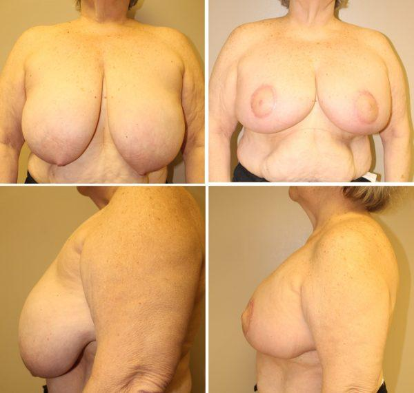 Case #8: Note that there is no vertical scar with this technique of breast reduction. Postoperative photos at 4 months.